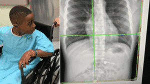 Child Swallows AirPods and Gets Emergency X-Ray