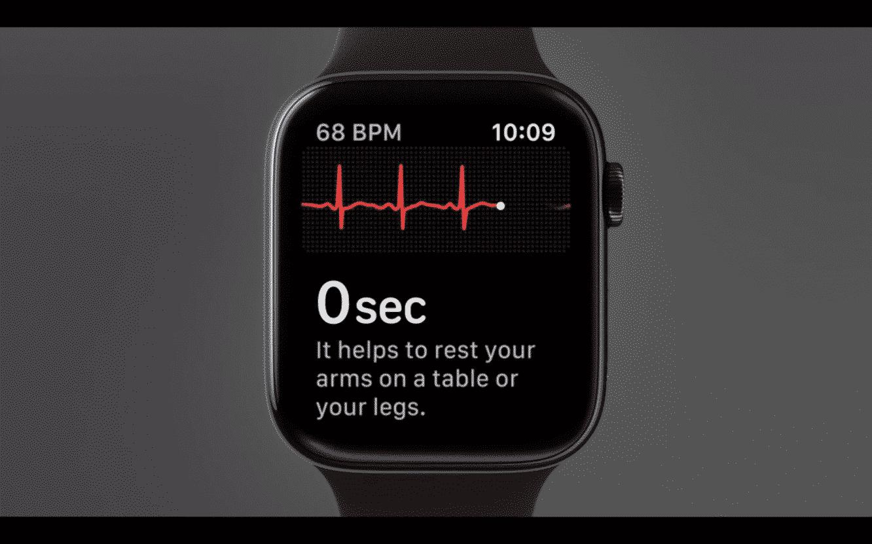 "Apple Watch ECG technology is useful but ""very rudimentary"""